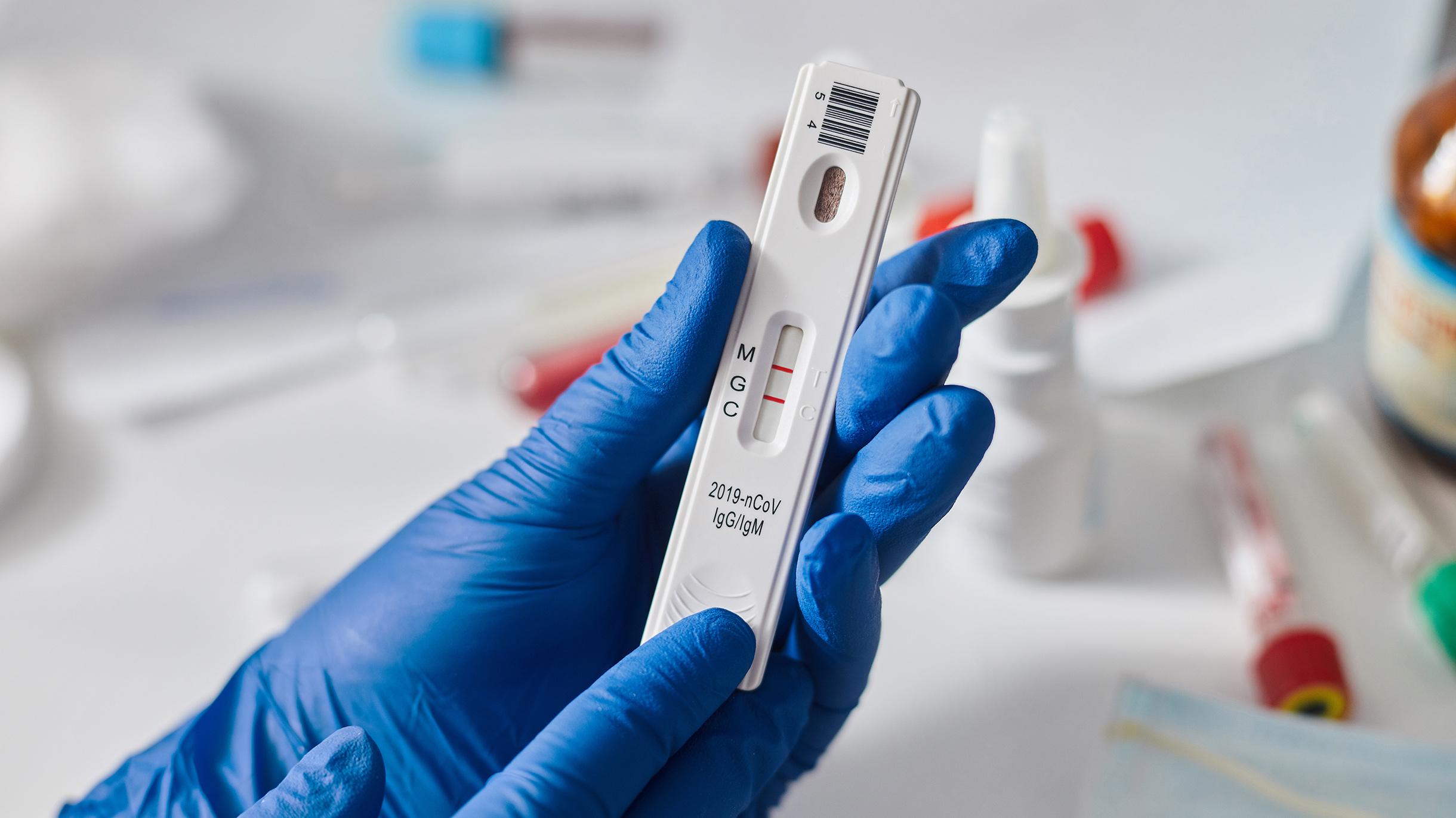 Опасность при покупке тестов на антитела к COVID-19