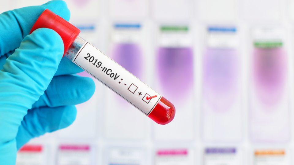 За месяц на Дону зафиксировано снижение заболеваемости COVID-19